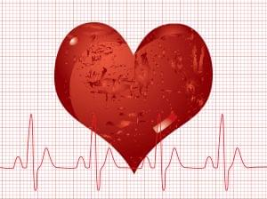 Heart disease management–with or without symptoms
