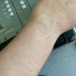 Women Are Sharing Photos Of A Freckle In The Middle Of Their Wrists