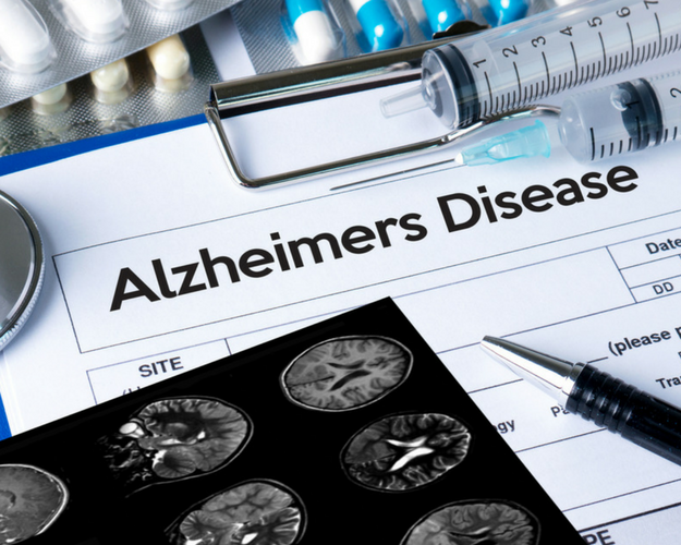 Tuesday Brad & Dan Show: Focus on Alzheimer's Disease treatment