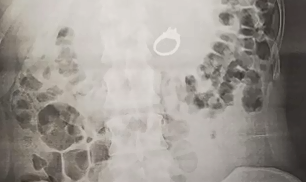 You won't believe what this woman swallowed