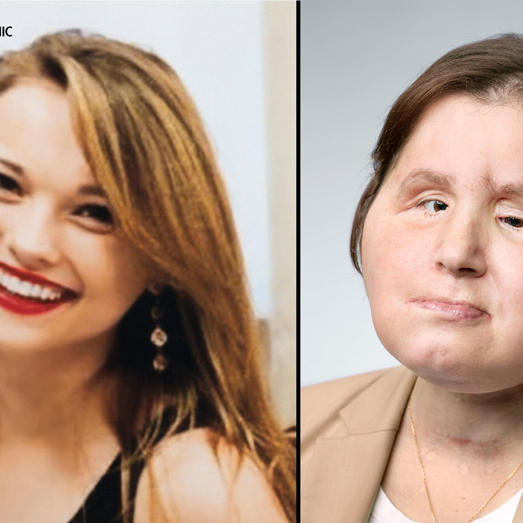 The Worlds Youngest Face Transplant Recipient Hopes To Start A New Life